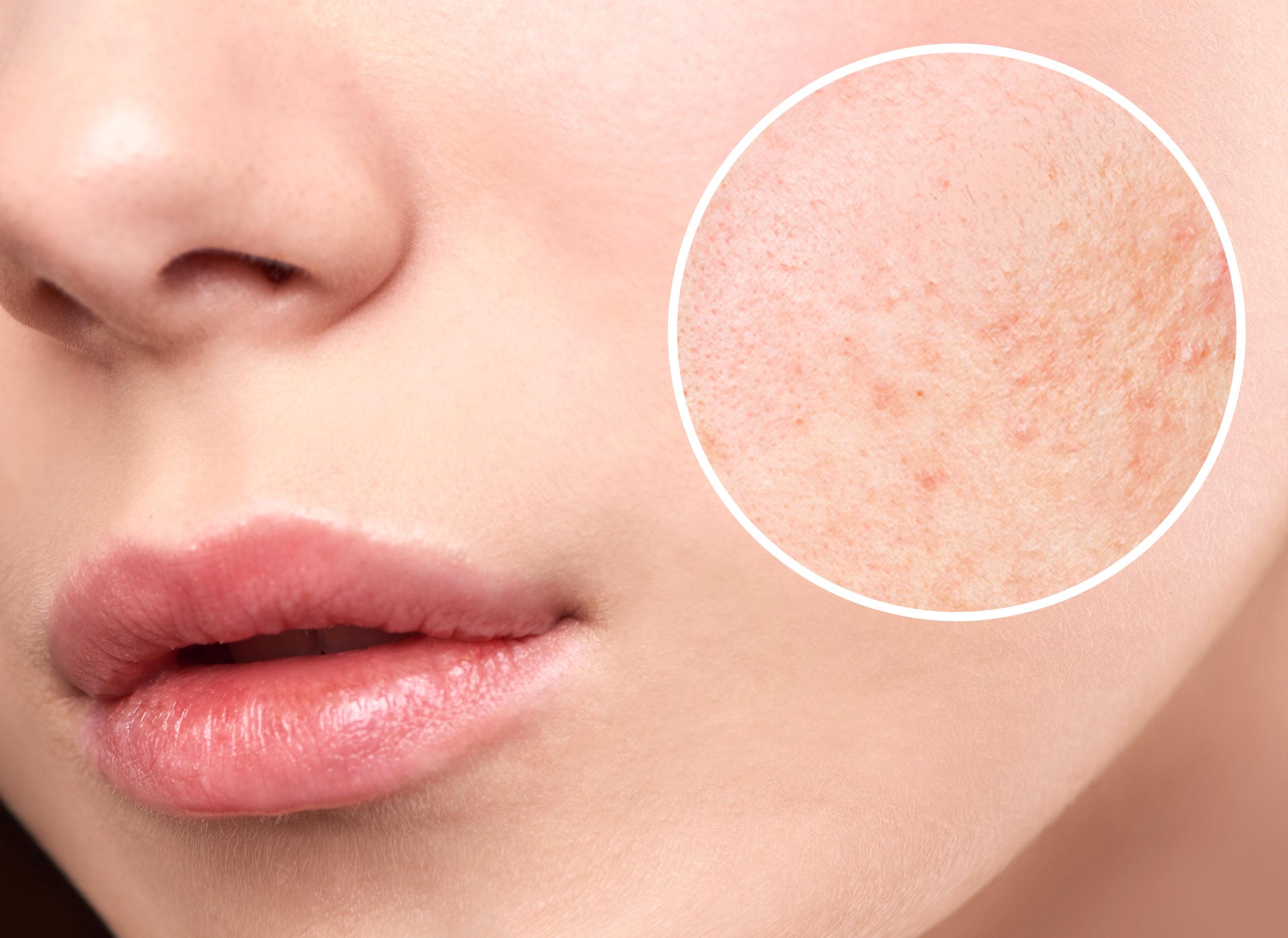Kosmetologia New Derm